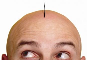 """Трансплантация волос: """"за"""" и """"против"""""""