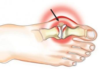 Симптомы и лечение подагры