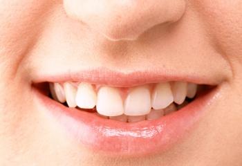 Опасные для зубов продукты