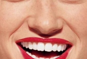 капы для отбеливания зубов в минске