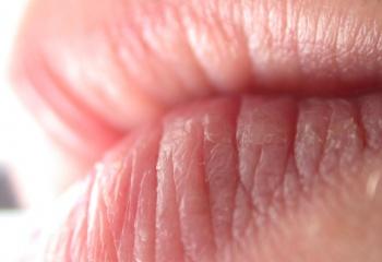 Как быстро залечить ранки на губах