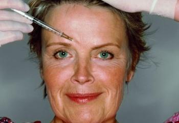 Подтяжка бровей и лба: показания и противопоказания, процедура, результаты и возможные осложнения