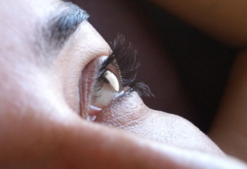 Отеки под глазами: скорая помощь