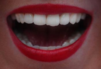 Украшение зубов бриллиантами, стразами и твинклами