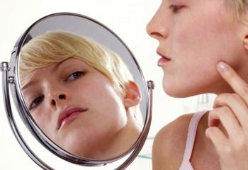 Косметические заболевания: угревая сыпь и жирная себорея
