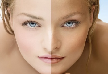 Светлая кожа или загар?