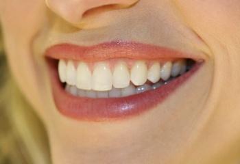 Отбеливание зубов для ослепительной улыбки