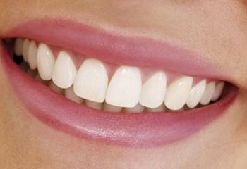 Польза и вред отбеливания зубов