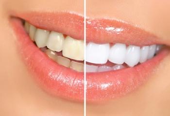 Отбеливание зубов: дома или у стоматолога