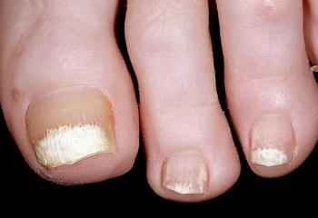 Грибковые поражения ногтей