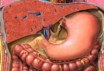 Как укрепить желудок