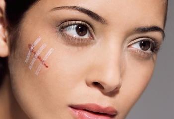 Как убрать шрамы и рубцы