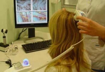 Эффективная методика лечения выпадения волос