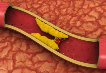 как проверить организм на наличие паразитов