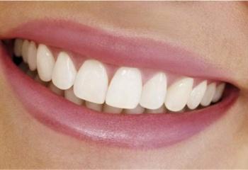 Как исправить щели между зубами