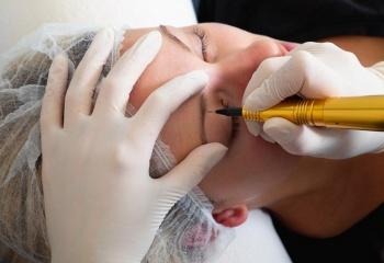 Как убрать татуаж на бровях