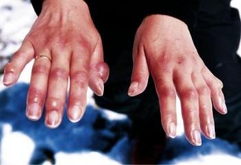 Как лечить обморожение рук