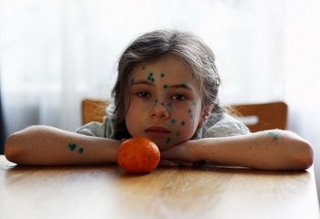 Как смыть зеленку с тела