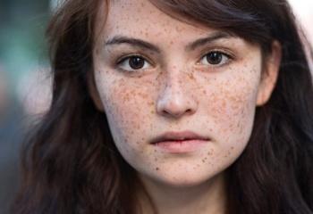 Пигментация кожи подмышек