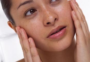 Домашние маски для проблемной кожи лица