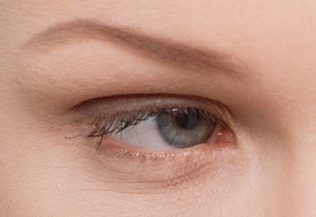 Как избавиться от причин возникновения синяков под глазами